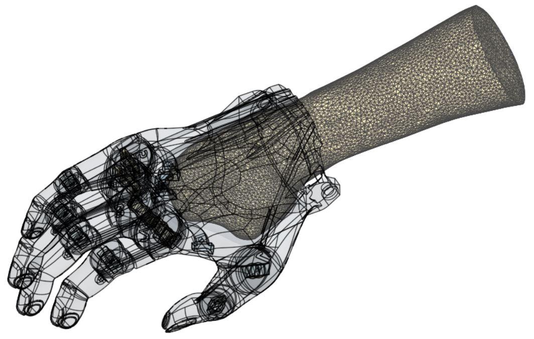 Adapter une emboîture pour une prothèse